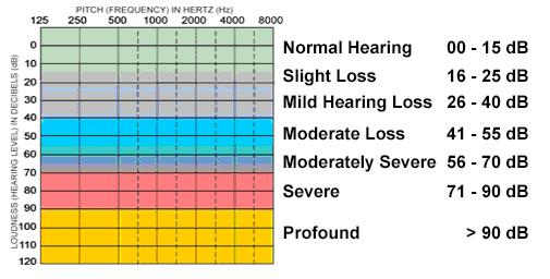 تقسیمبندی میزان کم شنوایی به درجات مختلف از حالت کاملا سالم تا حالت ناشنوایی کامل.