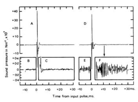 نمایی از اولین ثبت گسیل صوتی گوش که توسط پروفسور دیوید کمپ در سال 1978 انجام شد.