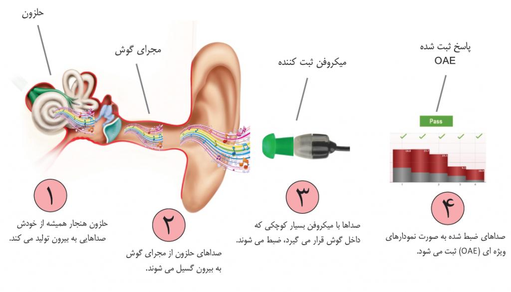 مراحل ثبت گسیلهای صوتی گوش به وسیلهی میکروفن ظریف کوچکی که درون گوش گذاشته میشود و انعکاسات برگشتی از سوی حلزون و سلولهای مویی خارجی ثبت میشود.