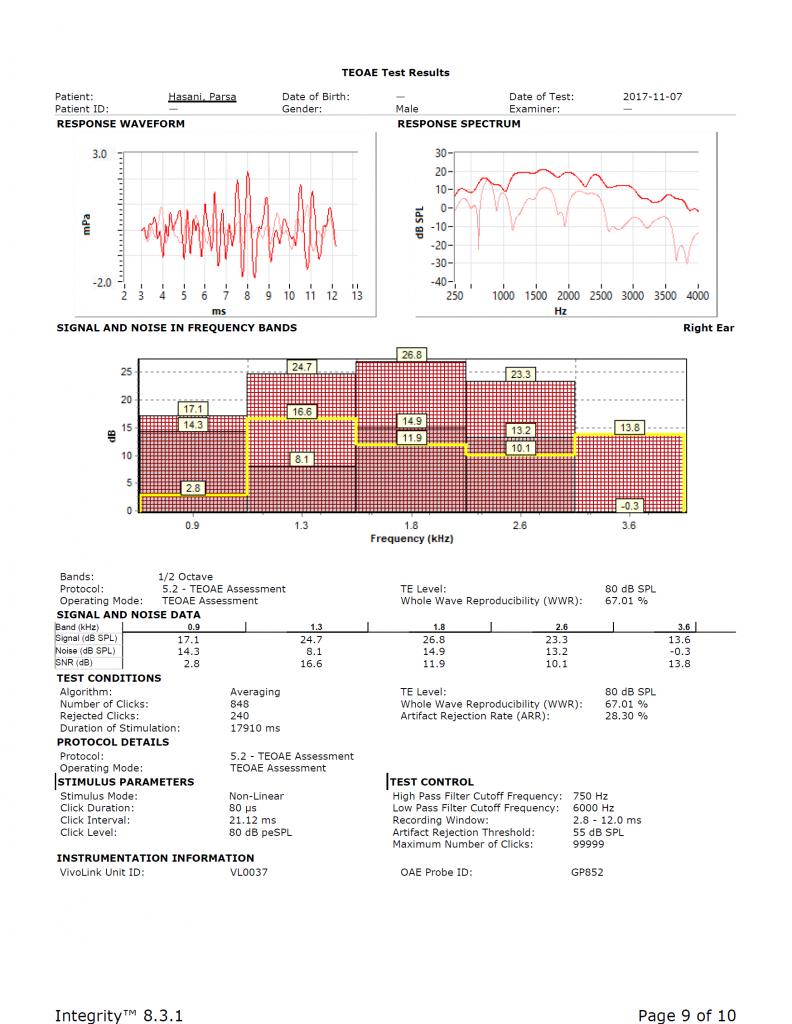 نمونهای از TEOAE ثبت شده برای گوش راست که میزان SNR برای هر ناحیهی فرکانسی مجزا و به صورت جدول در انتهای نتیجهی آزمایش و یا به صورت خط باریک زرد رنگی در ستون رنگی بالا نشان داده شده است