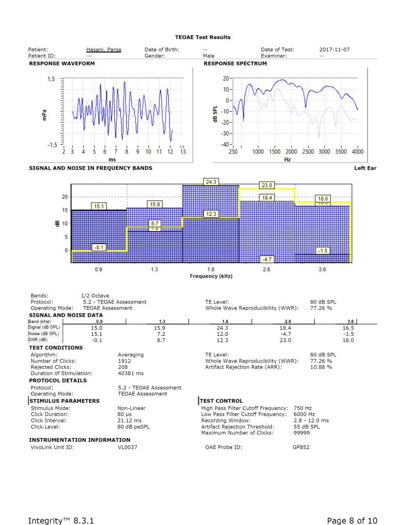 نمونهای از TEOAE ثبت شده برای گوش چپ که میزان SNR برای هر ناحیهی فرکانسی مجزا و به صورت جدول در انتهای نتیجهی آزمایش و یا به صورت خط باریک زرد رنگی در ستون رنگی بالا نشان داده شده است.